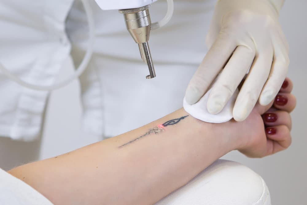 How Does laser removal works