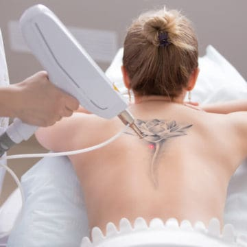 Tattoo Removal Facts and Questions Everybody Gets Wrong