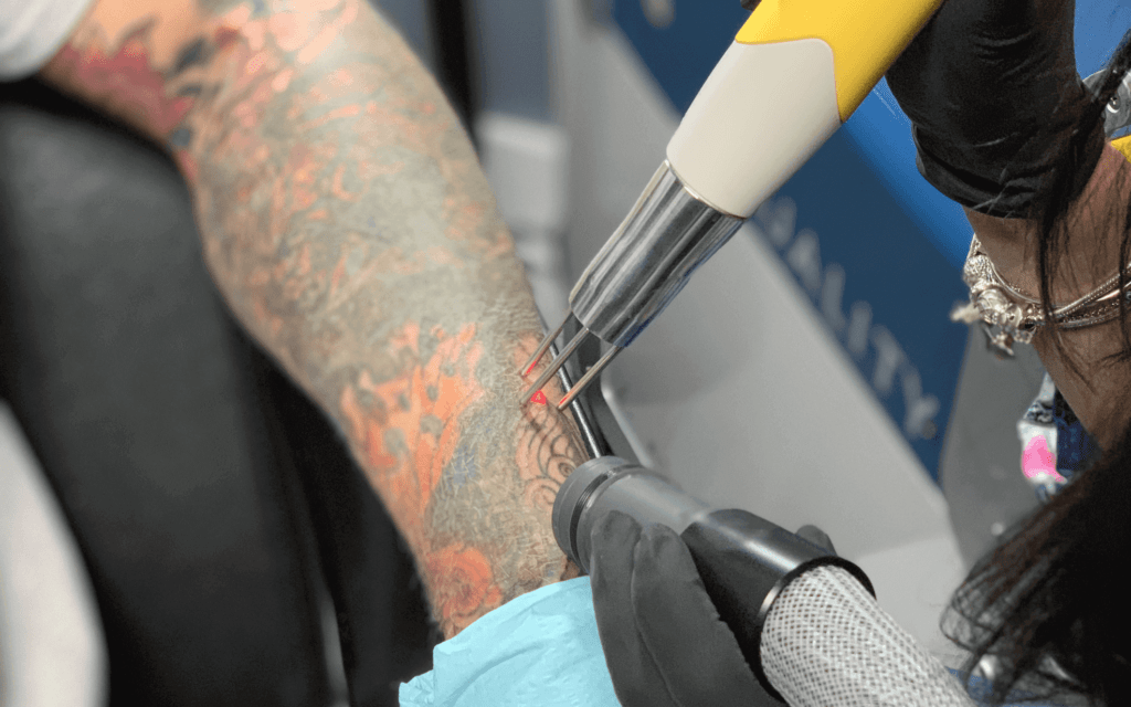 lase tattoo removal